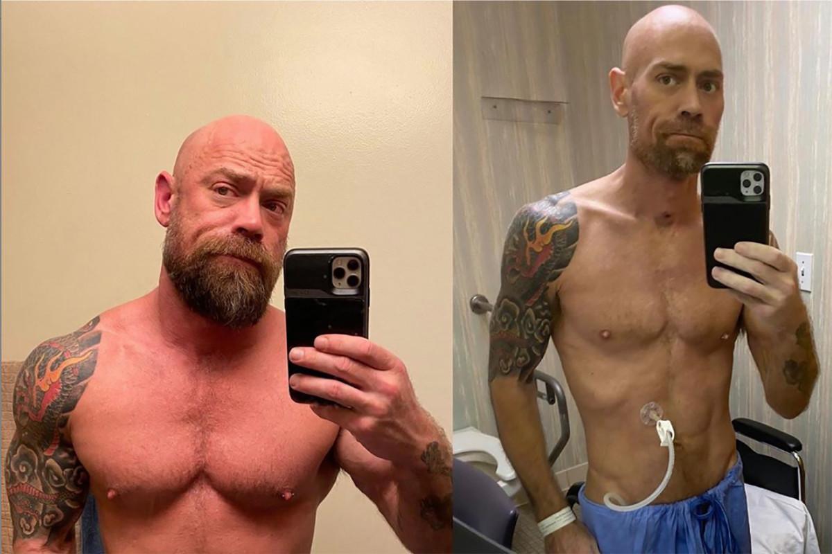 Coronavirus survivor shares shocking photo of his body in hospital